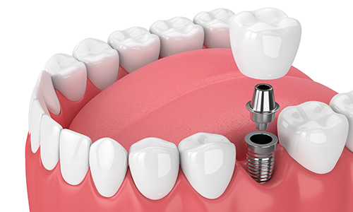 Dental Implants In Brighton by The Angel Dental Pratice