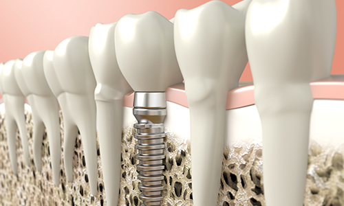 Dental Implants In Hove by The Angel Dental Pratice