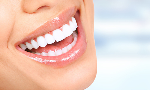 Teeth Whitening In Hove by The Angel Dental Pratice