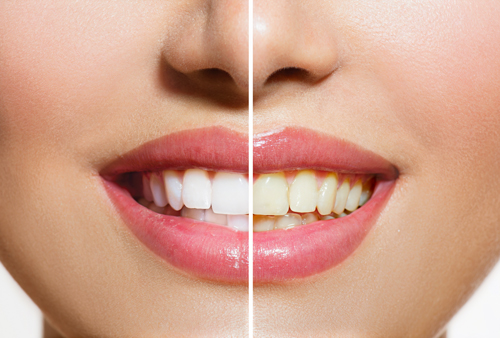 Teeth Whitening at Angel Dental In Hove